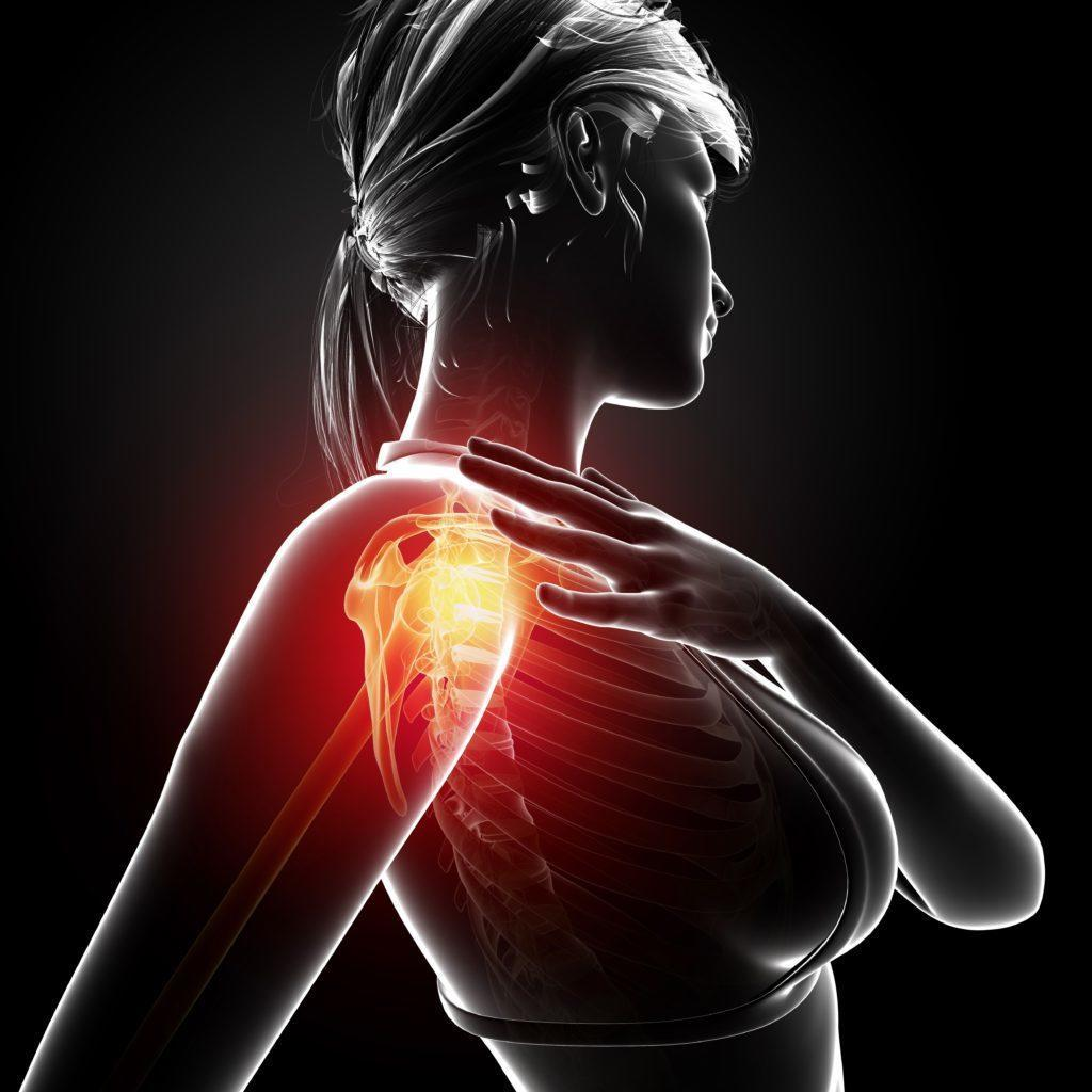 Shoulder pain female